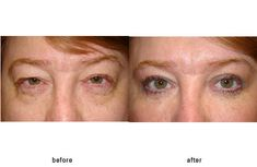 Canthoplasty Photos | Blepharoplasty Beverly Hills and Eyelid Surgery Beverly Hills - Dr. Guy Massry