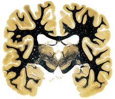 The Human Brain (cross section) at the level of the posterior third of the thalamus