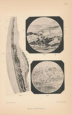 Cellular makeup of eye muscle 1880 framable antique Ophthalmology eye print -- Want additional info? Click on the image.