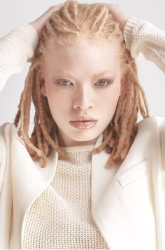 Pin by icosah on portraits character inspiration, natural hair styles, drea Albino African, Pretty People, Beautiful People, Albino Girl, Albino Model, Model Tips, Dreads Girl, Albinism, Female Character Inspiration