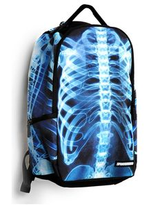 If this existed when I was in X-ray school, I would have totally worn this backpack to class.