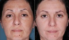 A #chemical peel is a technique which is used to improve the appearance of skin of face, neck and hands. It is used for treating fine lines around the eyes and mouth, which are caused by aging, hereditary factors and sun damage. Consult with an experienced cosmetologist, get the procedure done for best results.