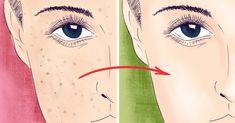 5 лучших масок для выравнивания цвета лица: как избавиться от пигментных пятен и неровного загара. Восторг.