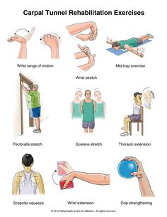 Summit Medical Group - Carpal Tunnel Syndrome Exercises