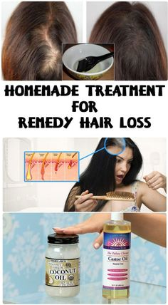 Homemade treatment for remedy hair loss #hair #health #beauty #hairloss #remedy #diy