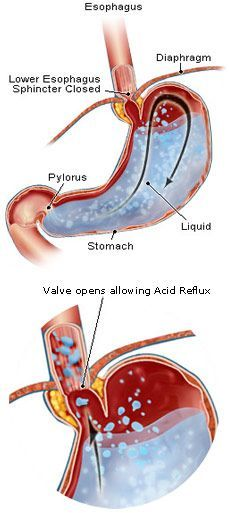 Acid reflux – can be due to too little stomach acid!