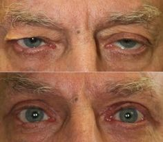 This patient underwent bilateral brow surgery, bilateral blepharoplasty, and left upper eyelid ptosis repair.  John R. Burroughs, MD PC Cosmetic and Reconstructive Eyelid and Facial Surgery www.drjohnburroughs.com 719-473-8801 Colorado Springs, Canon City, Pueblo