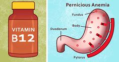 8 important signs of vitamin B12 deficiency that are often overlooked
