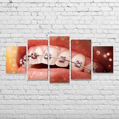 Quadro para Consultório Odontológico - Ortodontia - Bimper - Quadros Decorativos