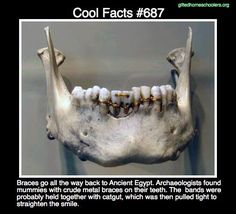 Cool facts #687   http://www.ceounplugged.com/curios/2014/6/11/curio-343-mummy-brace-face