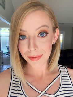 Curious about at home microdermabrasion? Check out my easy step-by-step guide on how to do at home microdermabrasion and all the amazing skin benefits! Under Eye Filler Cost, Under Eye Fillers, Cheek Fillers, Facial Fillers, Home Microdermabrasion, Tear Trough, Sparkle Lips, Dark Under Eye, Makeup Tips For Beginners
