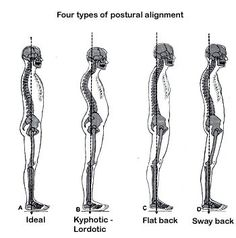 Poor Posture Causes Pain! Poor Muscle structure and Soft Tissue Disfunction causes poor posture. Maintain a Healthy Balance, Get a Massage!