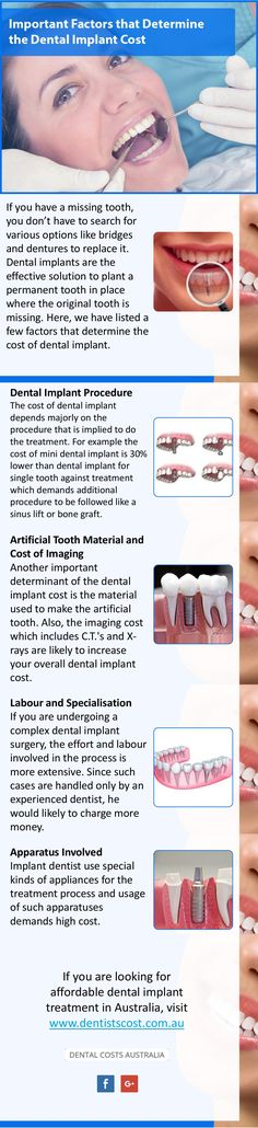 Dental Implant Procedure, Dental Implants, Wisdom Teeth Removal Cost, Dental Costs, Factors, How To Find Out, Australia, Image
