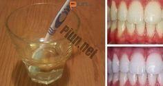 Hoy te presentamos un método para blanquear los dientes muy efectivo y lo mejor es que está basado sólo en un ingrediente: el vinagre de manzana.