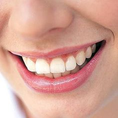We offer the Best Dental clinic and surgery care in Michigan. We have professional and qualified dentists to provide world-class dental services. Health Guru, Health Class, Health Trends, Oral Health, Pregnancy Health, Pregnancy Workout, Womens Health Magazine, Before Wedding, Healthy Women