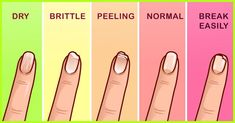 Strengthening Your Nails 101: Everything You Need To Know