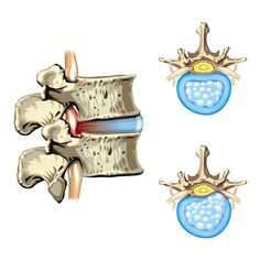 The Disc Herniation Solution That You Haven't Heard About...
