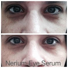 Nerium Eye Serum results after a few minutes.