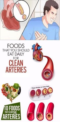 Arteries Remedies 10 Foods That You Should Eat Daily For Clean Arteries - Did you know that hypertension and high cholesterol are the two major contributing factors toward clogged arteries? The arteries are blood vessels that Clean Arteries, Clogged Arteries, Health And Fitness Tips, Health Advice, Health And Wellness, Health Care, Women's Health, Wellness Tips, Health Benefits