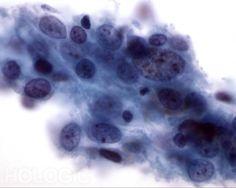 Grootcellig anaplastisch carcinoom - Pap kleuring
