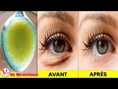 If you want to Remove Wrinkles Under The Eyes, as well as other eye problems, such as dark circles, crow's feet, and puffy eyes. Beauty Care, Beauty Skin, Beauty Hacks, Eye Tricks, Wrinkle Remedies, Neck Wrinkles, Facial Tips, Eyes Problems, Face Yoga