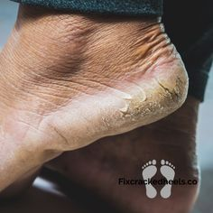 """""""Why are you suffering? You don't need to suffer from heel fissures anymore. Visit our website for more information! Whatcausescrackedheels #footsoak #homeremedies #dryfeet #deadskin #overnightcrackedheels #heels #essentialoilsforheels #calluscare #footcare #footcallus #footcareroutine #footcarehealth #heelfissure #pedicuretips Baby Feet Peel, Foot Peel, Heel Fissures, Foot Soak Recipe, Heel Balm, Pedicure Tips, Peel Off Mask, Foot Cream"""