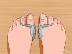 Image titled Get Rid of Bunions Step 5