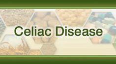 Is There A Relationship Amongst Fibromyalgia and Celiac Disease ?   celiac disease