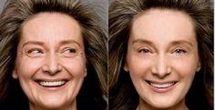Nossa pele é bastante agredida.A exposição exagerada ao sol, a alimentação equivocada, a poluição, o estresse, o uso de produtos químicos, tudo isso contribui para o desgaste e a perda da beleza da pele.É impossível deter o envelhecimento.