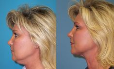 Get rid of a double chin fast and easy without surgery - http://www.slim-chin.com
