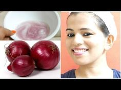 How To Make Your Hair Grow Faster : DIY Onion Hair Mask: Promote Hair Growth