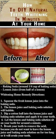 DIY Natural Teeth Whitening In Minutes At Your Home Pictures, Photos, and Images for Facebook, Tumblr, Pinterest, and Twitter #TeethWhiteningTips