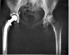 Las complicaciones de la cirugía de cadera, mayores de lo que se creía