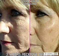 #1 U.S. Anti-Aging Skin Care Brand Rodan+Fields Redefine Regimen wipes out the signs of aging! This is Barb and her 3 WEEKS RESULTS!!! Consistent use of these dermatological grade, multi-med therapy products can change your skin! Call me to get started!