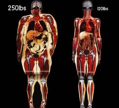 Why Some People Are Fat and Others are Thin