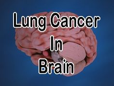 Study: Nicotine May Promote Brain Tumors in Lung Cancer Patients - Lung Cancer Blog Nicotine Patch, Effects Of Nicotine, Smoking Effects, Smoking Cessation, Brain Tumor, Lung Cancer, Chronic Illness, Lunges