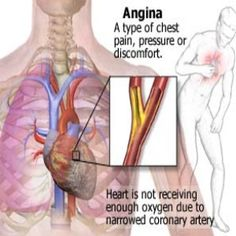 How to Treat Angina with Vitamin - Best Vitamins For Angina Treatment | Natural Home Remedies