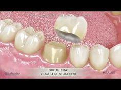 Prótesis dental fija - puentes, coronas y carillas. - YouTube