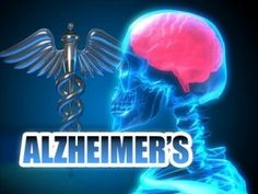 Flourene compounds and Alzheimer's disease