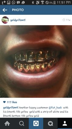 Gold grillz, yellow gold teeth. Golds.