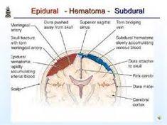 Pathology of Head injury. Epidural Hematoma, Dura Mater, Medicine Notes, Cerebral Cortex, Head Injury, Neurology, Pharmacy, Presentation, Google Search