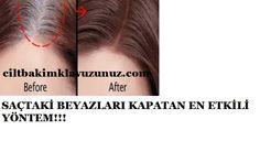 Saçtaki beyazları kapatan en etkili yöntem.Bu yöntem ile saçınızdaki oluşan beyazlıkardan tamamen kurtulacaksınız