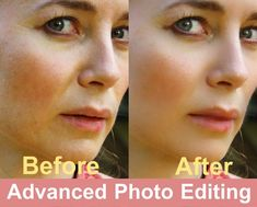 Photo Retouching, Photo Editing, Photo Touch Up, Photoshop Face, Bald Patches, Blemish Remover, Even Out Skin Tone, Remove Acne, Beauty Photos