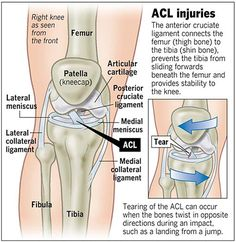 What is #AnteriorCruciateLigament or #ACL. Other information in this post�