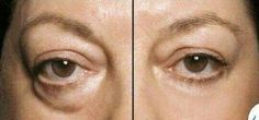 Instantly Ageless by Jeunesse. Check out the results. 5 min ladies and guys can change your look. Contact me for free samples b88gordon88@gmail.com and check out my website www.beautyinaflash.jeunesseglobal.com