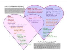 cardiac dysrhythmia | Cardiac dysrhythmia EKG Venn Diagram Fun | disorderlycna