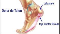 Si tienes dolor en el talón esto es lo que le pasa a tu cuerpo
