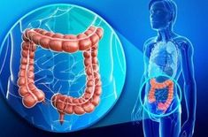 Colon cancer is a disease that many people in the world have! You'll be surprised to learn what coconut oil did to colon cancer! Colon cancer: it's one. Herbal Colon Cleanse, Homemade Colon Cleanse, Colon Detox, Bowel Cleanse, Lymph Detox, Intestino Permeable, Cleaning Your Colon, Colon Health, Gut Health