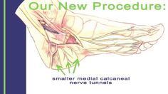 New Effective Treatment for Tarsal Tunnel Syndrome
