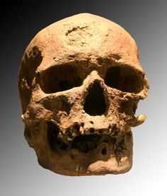 The original Cro-Magnon skull. The name derives from the Abri de Cro-Magnon (French: rock shelter of Cro-Magnon, the big cave in Occitan) near the commune of Les Eyzies-de-Tayac-Sireuil in southwestern France, where the first specimen was found. Cro Magnon, Caucasian Race, Early Humans, Human Evolution, Medieval, Inca, Skull And Bones, Primates, Science And Nature